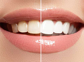 ottawa teeth whitening